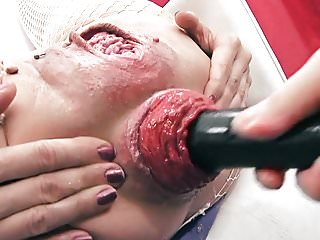 Most Incredible Prolapse Scene! Cervix, Fisting, Max Stretch